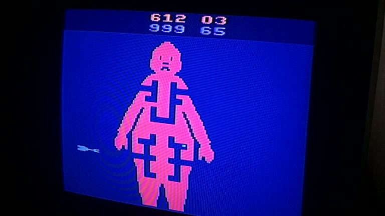 Atari 2600 / VCS - M*A*S*H - NTSC - Game 5, Difficulty BB [Cease Fire] - 999 - Greg Degeneffe