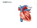 Herzinfarkt - Warnzeichen