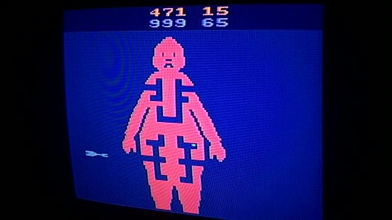 Atari 2600 / VCS - M*A*S*H - NTSC - Game 7, Difficulty BB [Operating Room] - 999 - Greg Degeneffe